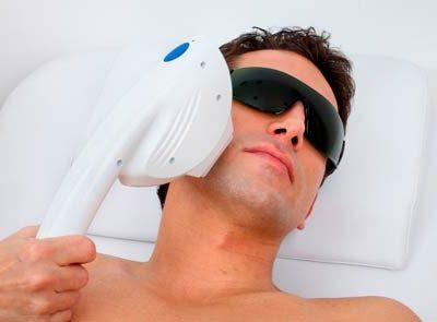 laser-hair-removal-brisbane-men