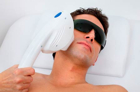laser-hair-removal-brisbane-men