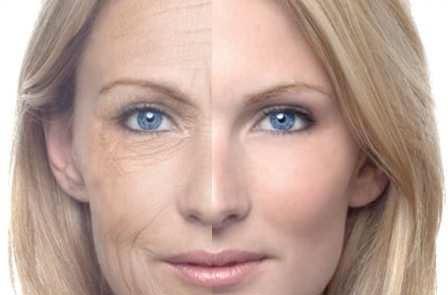 rejuvenecimiento_facial