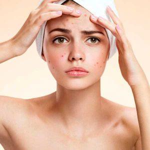 Peeling químico anti acné y Despigmentante o acné