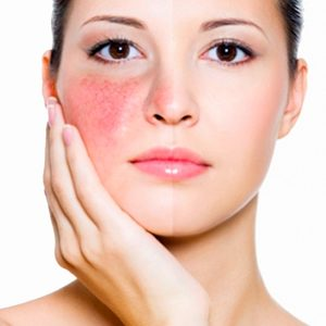 Despigmentante acné rosácea láser IPL rostro completo