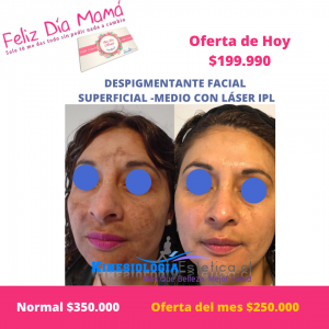 Despigmentante facial superficial – medio con Láser IPL