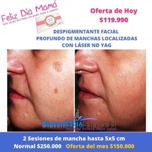 Despigmentante facial profundo de manchas localizadas con Láser ND YAG