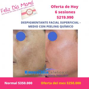 Despigmentante facial superficial con peeling químico