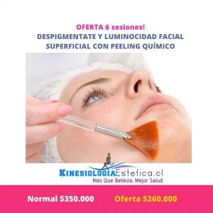 Despigmentante y luminocidad facial superficial con peeling químico